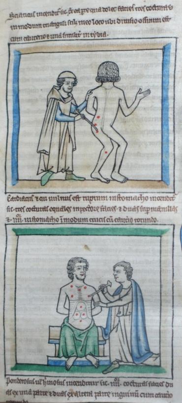 f. 3ra, cautery scenes