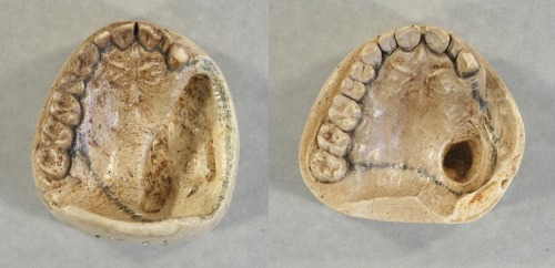 The 1893 (left) and 1897 (right) casts of President Cleveland's top teeth.