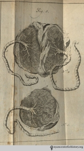 Figure 5, Number 1 shows a placenta for a single infant. Number 2 shows a placenta for twins.