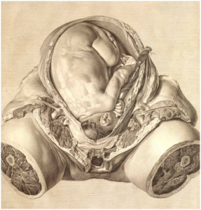 From Hunter's Gravid Uterus. Image courtesy of the Dittrick Museum.