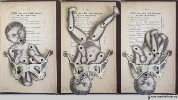 Moveable baby and female pelvis from one of NYAM's 19th century obstetrics texts, Dr. K. Shibata's Geburtschülfliche Taschen-Phantom, or the Obstetrical Pocket-Phantom.