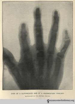 "Perhaps the first published X-ray in the United States of a clinical condition. In ""Rare Anomalies of the Phalanges Shown by the Röntgen Process,"" Boston Medical and Surgical Journal 134 (no. 8, February 20, 1896): 198–99."