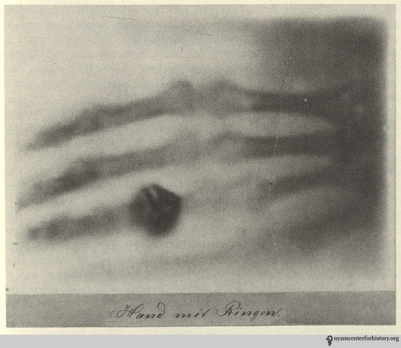 X-ray of the hand of Anna Bertha Röntgen, submitted by Wilhelm Röntgen, to the Physico-Medical Society of Würzburg, December 28, 1895. Image from Bettyann Holtzmann Kevles, Naked to the Bone: Medical Imaging in the Twentieth Century (New Brunswick, N.J.: Rutgers University Press, 1997), pp. 21.