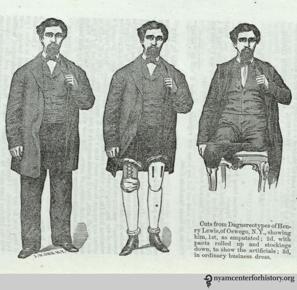 "Amputated, in stockings, and pants rolled up to show the artificials. On page 24 of Douglas Bly's """"A new and important invention,"" 1862."