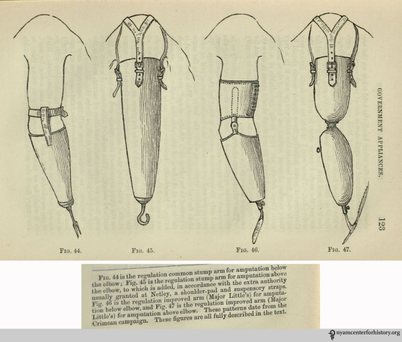 Regulation common stump arms. In Henry Heather Bigg, Artificial Limbs and Amputations, 1889, p. 122 and 123.
