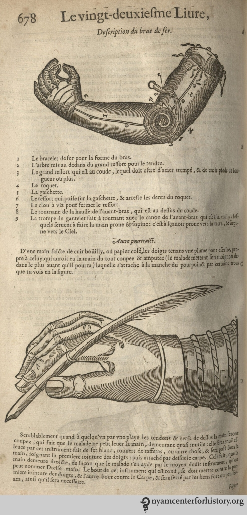 Artificial arm in use. From  our 1633 edition of Les oeuvres d'Ambroise Paré.