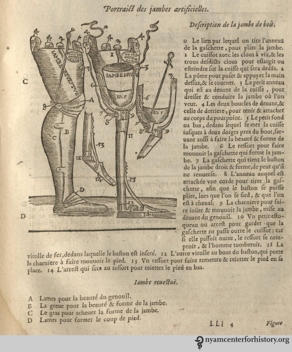 Paré's  above-the-knee prosthetic. From  our 1633 edition of Les oeuvres d'Ambroise Paré.
