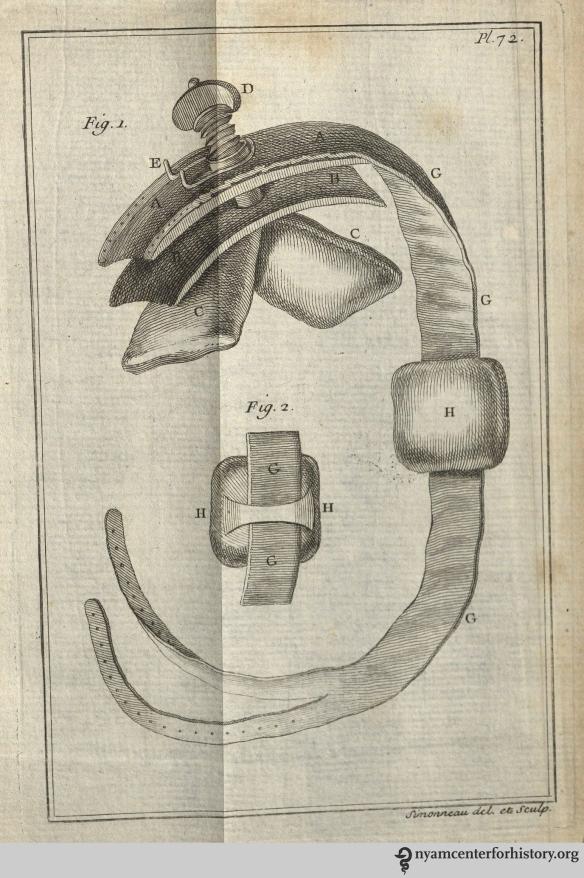 Petit's tourniquet. Plate 72 of Traité des maladies chirurgicales, et des opérations qui leur conviennent, 1774 edition.
