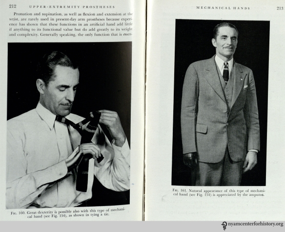 """Great dexterity is possible also with this type of mechanical hand.""  In Thomas & Haddan, Amputation Prosthesis, 1945, p. 212-213."