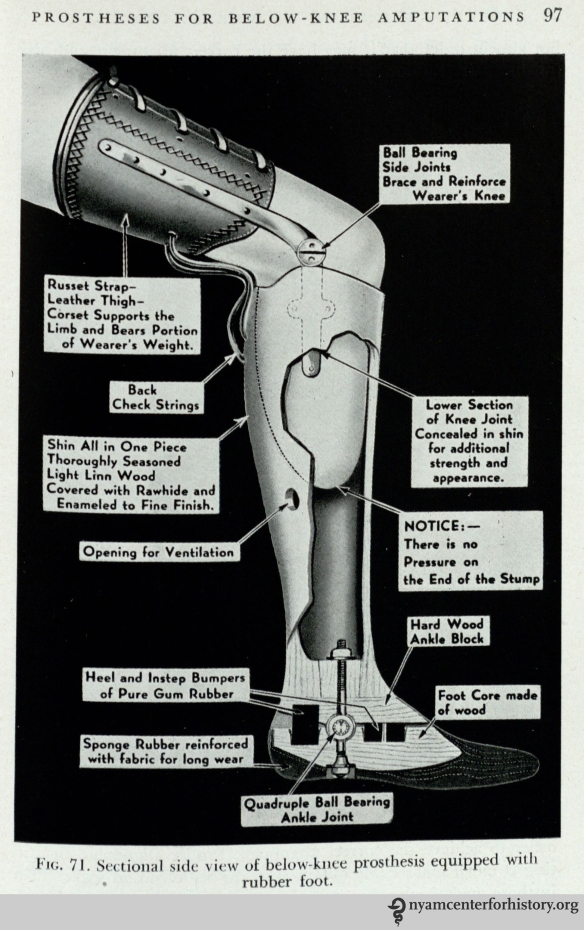 """Below-knee prosthesis equipped with rubber foot."" In Thomas & Haddan, Amputation Prosthesis, 1945, p. 97."