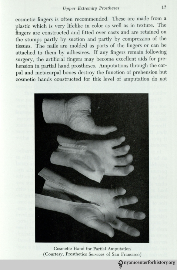 Cosmetic hand for partial amputation. In William A. Tosberg,  Upper and Lower Limb Prostheses, 1962, p. 17.