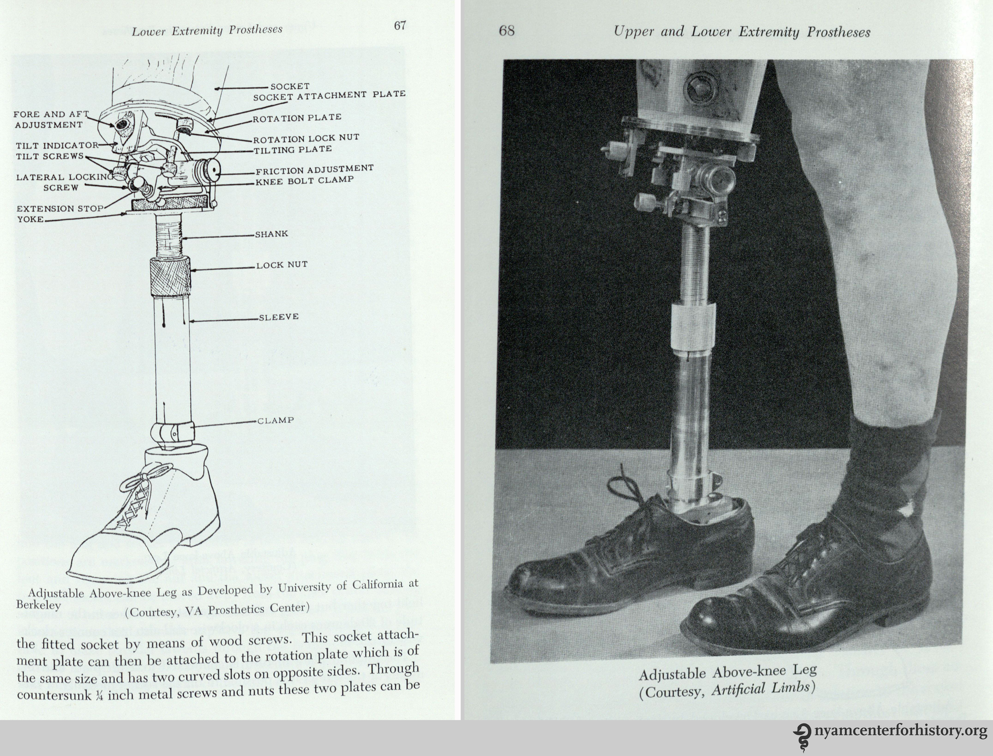 On Paré and Prosthetics | Books, Health and History