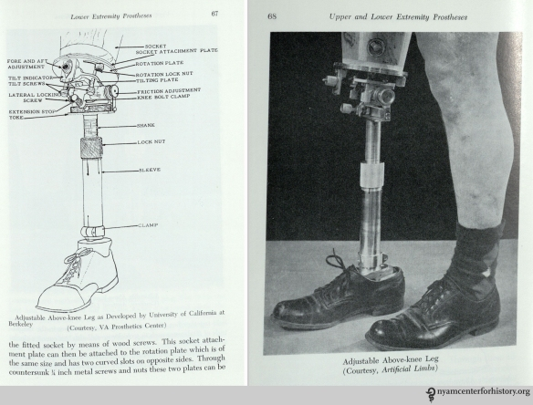 Adjustable above-knee leg. In William A. Tosberg,  Upper and Lower Limb Prostheses, 1962, p. 67-68.