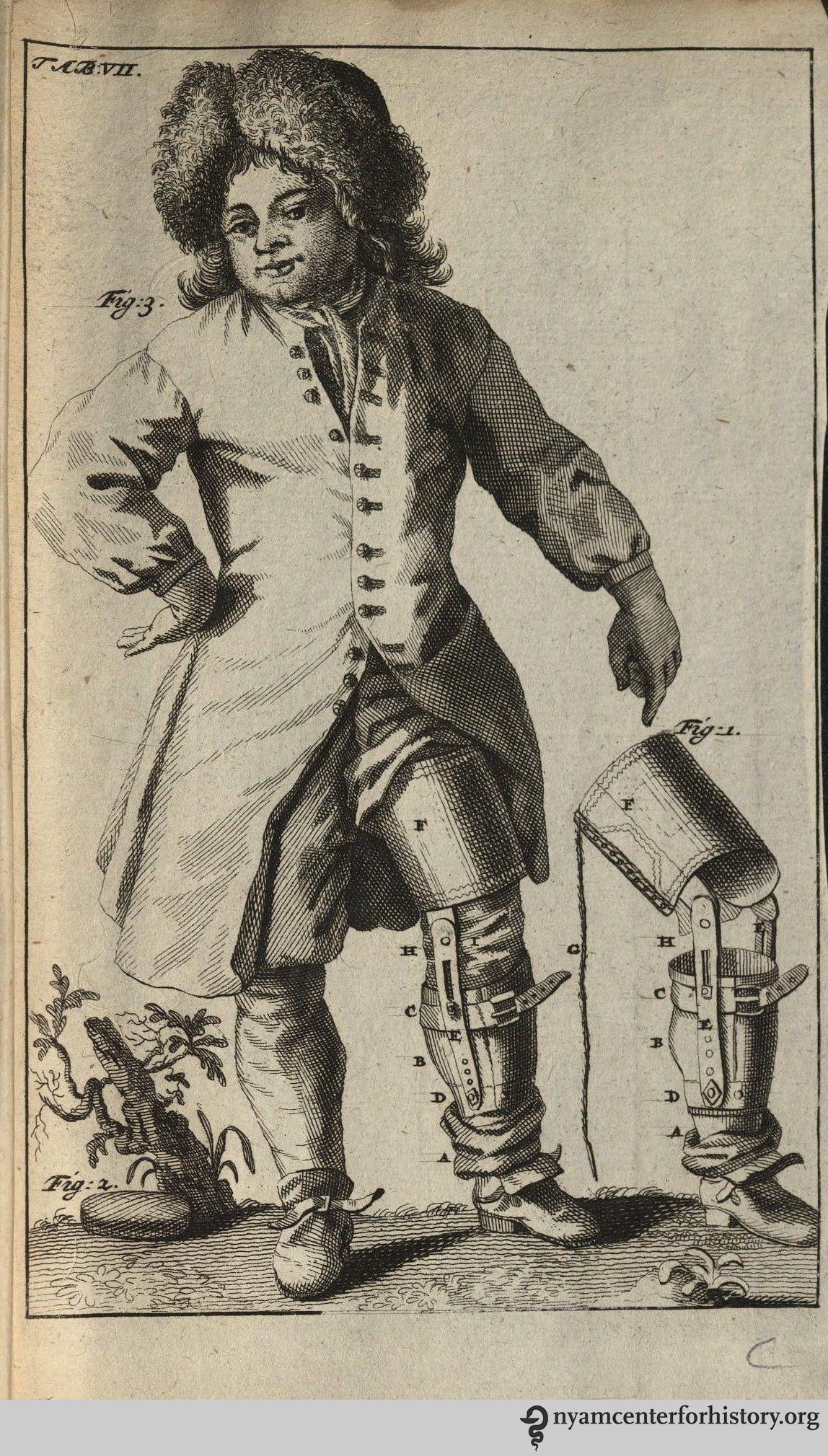 In Dissertatio epistolaris de nova artuum decurtandorum ratione, 1696