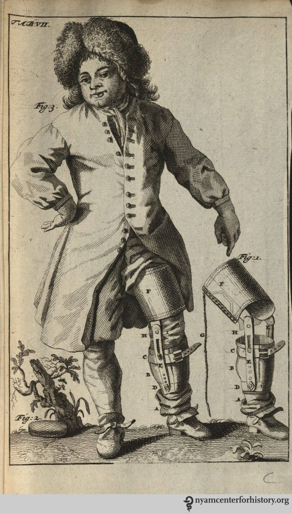 Verduyn's below-knee prosthetic. In Dissertatio epistolaris de nova artuum decurtandorum ratione, 1696.