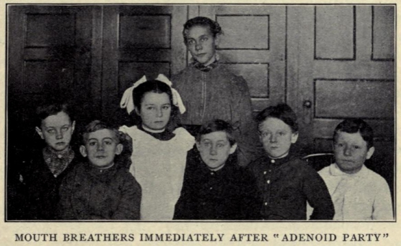 """Mouth breathers immediately after 'adenoid party.'"" In Allen, Civics and Health, 1909, p. 46."