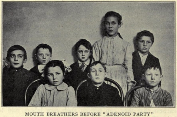"""Mouth breathers before adenoid party."" In Allen, Civics and Health, 1909, p. 55."