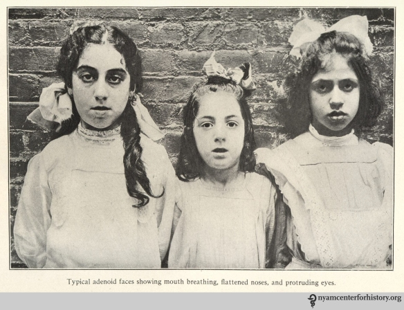"""Typical adenoid faces showing mouth breathing, flattened noses, and protruding eyes."" In Gulick and Ayres, Medical inspection of schools, 1917 (2nd ed.), p. 170."