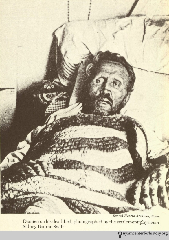 Damien on his deathbed, photographed by the settlement physician, Sidney Bourne Swift. In Daws, Holy man: Father Damien of Molokai, 1973.