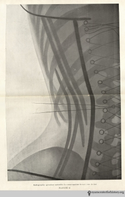 Plate II: Life-size X-ray of a front-closing corset (rear view). In O'Followell, Le Corset, vol. 2, 1908.