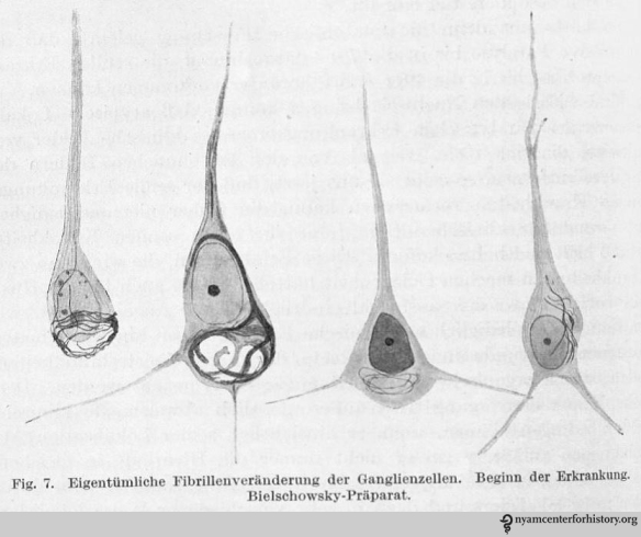 Drawings of histological preparations of Auguste D's material, stained by Bielschowsky's technique to demonstrate tangles, and their stages. Beginning of the disease. In Alzheimer, Ueber eigenartige Krankheitsfaelle des spaeteren Alters [On peculiar cases of disease at higher age]. Zeitschrift fuer die gesamte Neurologie und Psychiatrie 1911;4:356-385.