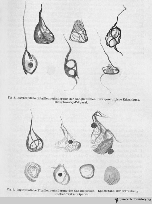 Drawings of histological preparations of Auguste D's material, stained by Bielschowsky's technique to demonstrate tangles, and their stages. 8. Advanced stage; and 9. Terminal state of the disease.. In Alzheimer, Ueber eigenartige Krankheitsfaelle des spaeteren Alters [On peculiar cases of disease at higher age]. Zeitschrift fuer die gesamte Neurologie und Psychiatrie 1911;4:356-385.