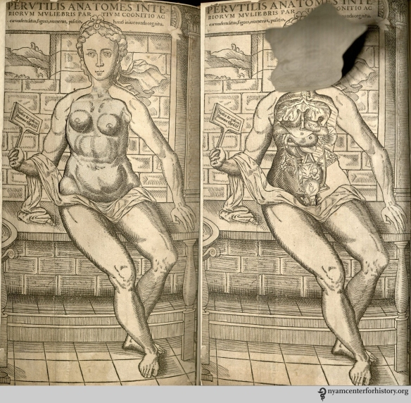 Female flap anatomy from The Academy's copy of the 1559 English edition of Geminus' Compendiosa.