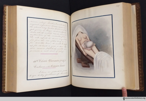 Stillwell's prize notebook recording the gynecological clinics of Dr. T. Gaillard Thomas, 1873–74.