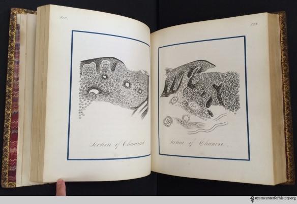 John Edwin Stillwell's prize notebook of Dr. Fessenden Nott Otis's lectures on venereal diseases, 1874–75.
