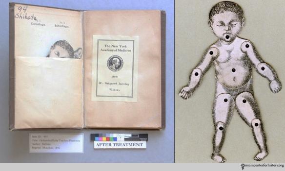 Koichi Shibata, Geburtshulfliche Taschen-Phantome, after treatment (left). The moveable paper baby (right).