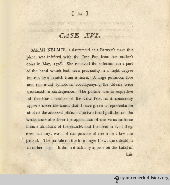 Jenner's description of Sarah Nelmes' cowpox infection in Inquiry, 1798.