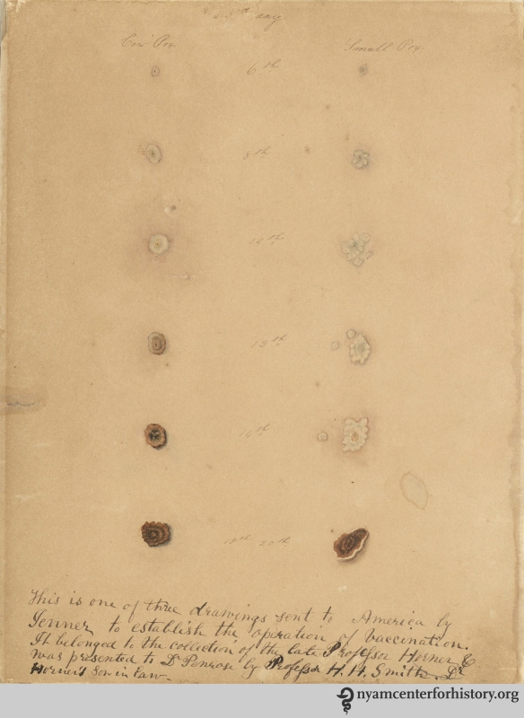 The New York Academy of Medicine holds this hand-colored drawing that shows the difference between cowpox and smallpox pustules at various stages of infection.
