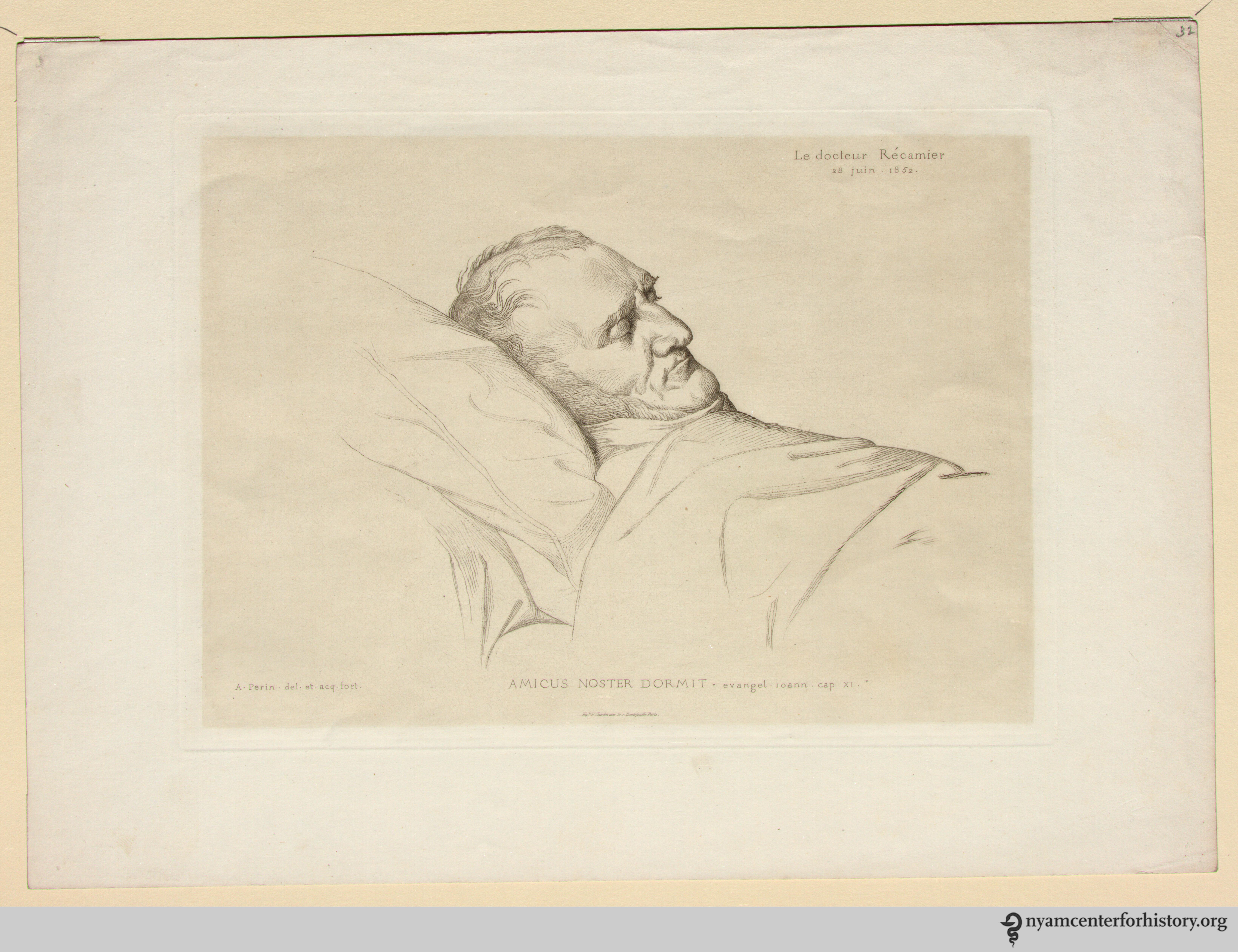Récamier, Joseph Claude Anthelme. Example of a lithograph